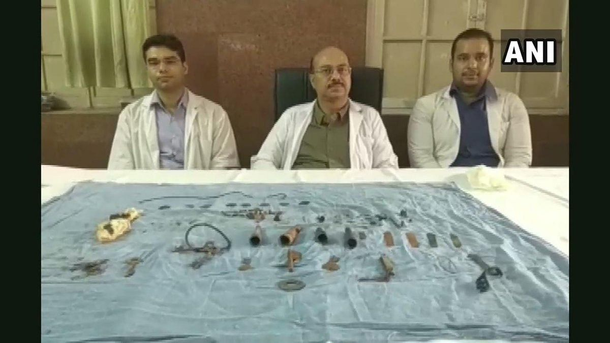 Rajasthan: Doctors remove 80 objects including keys, chains from man's stomach in Udaipur