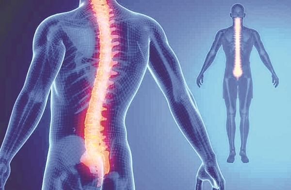 Spinal woes rose by 25% for corporate workforce: Doctors