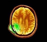 Tiny carrier can help treat brain tumour