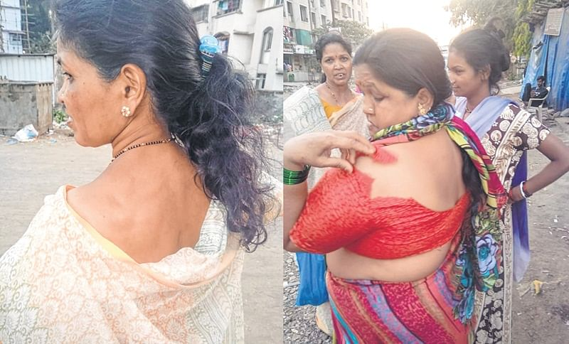 Mumbai: Women beaten, stripped for protesting against illegal wall
